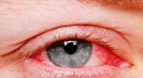 """أخصائي يستبعد إمكانية تسلل""""كورونا"""" للجهاز التنفسي عبر العين"""