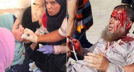 القدس.. الاحتلال يريق دم الفلسطينيين يوم عيد الأضحى